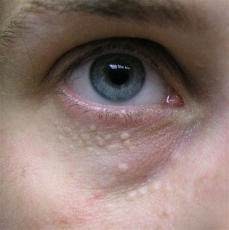 skin growths near eyes picture 2