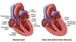 blood flow through heart picture 7