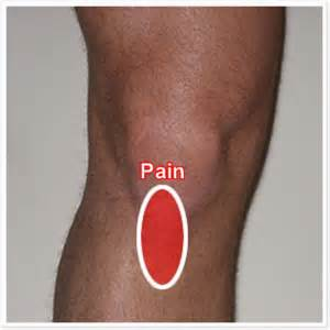 pain just right of knee cap picture 1