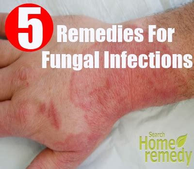 natural cures for yeast and fungus infections picture 5