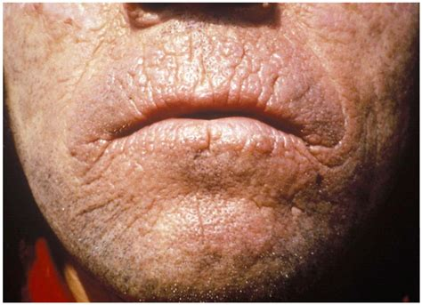 causes of changes of skin condition picture 9