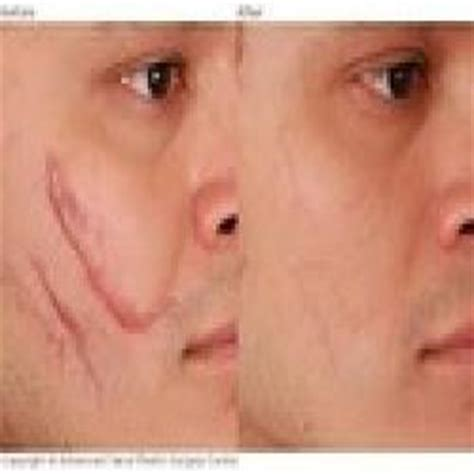 acne scar removal surgery picture 3