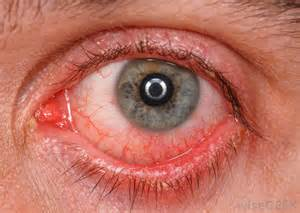High blood pressure on the eyes picture 1