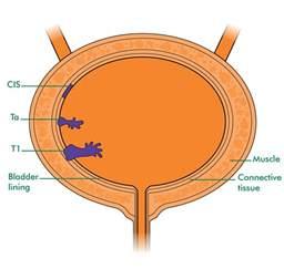 bladder cancer stage ta picture 7