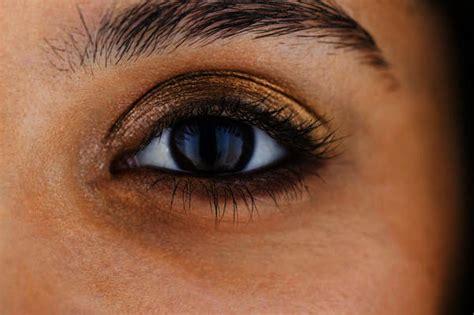 allergy in skin around eyes picture 13