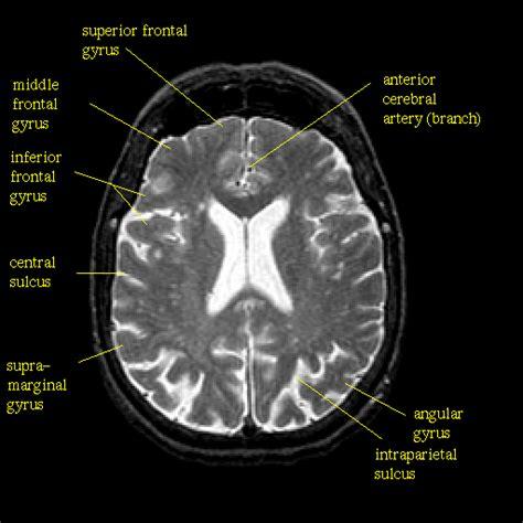 cloudy brain mri results picture 9