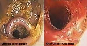 is colon cleansing medically necessary picture 11