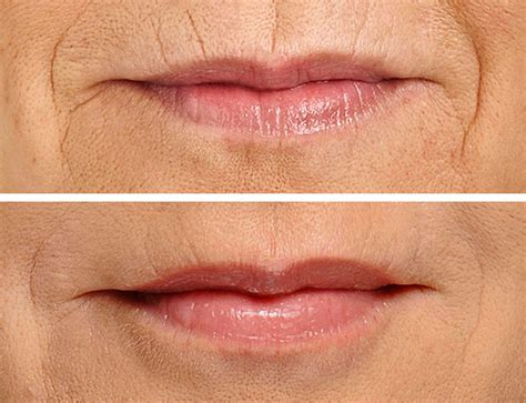 restylane for lips picture 6