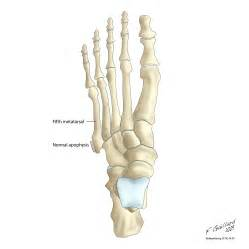 injury to mtp joint of fifth metatarsal picture 9
