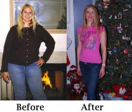 weight loss of an anorexic picture 6