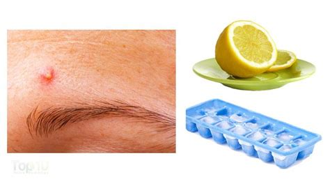 what is the best tablet? for remove acne picture 14