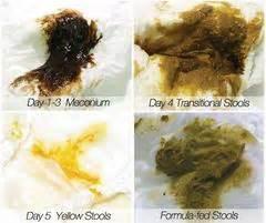 infant dark green bowel movements picture 11