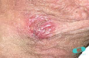 pictures of herpes in the genital area picture 1