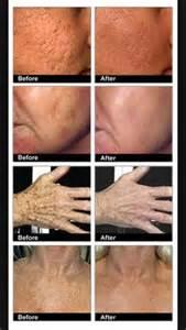 stretch mark treatment arbonne picture 9