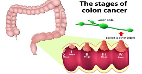 indegstion signs of colon cancer picture 11