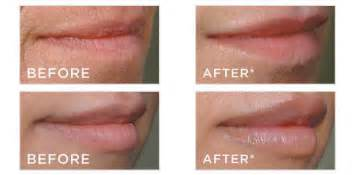 stop swelling from lip injections picture 10