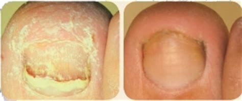 toe nail laser treatment in new mexico picture 6