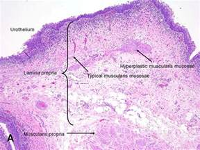 bladder squamous cell carcinoma picture 5