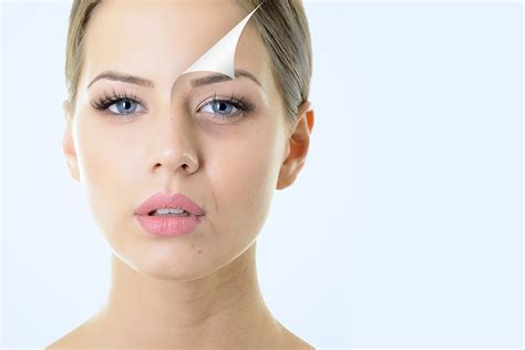 aging botox treatment picture 2