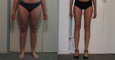 flabby legs after weight loss picture 19