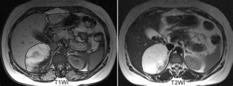 incompletely distended bladder on mri picture 7