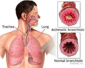 lung constrict treatment picture 13