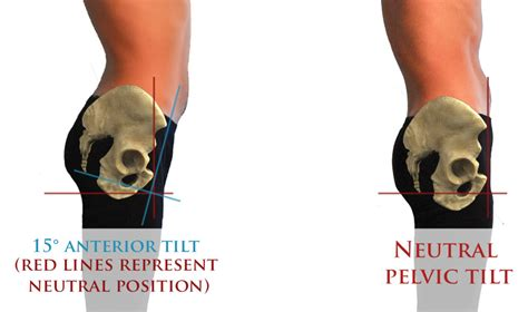 what are the symptoms of a tight pelvic picture 7