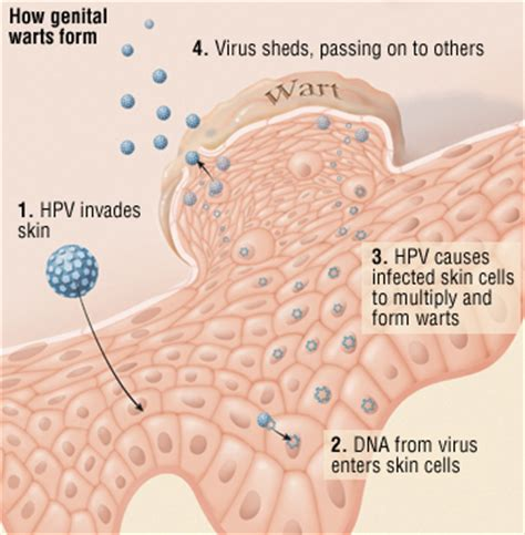 drug remove warts caused by hpv picture 3