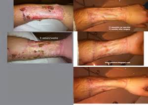 before and after phalloplasty erection pictures picture 14