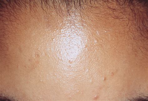 blue light treatment for flat warts picture 6