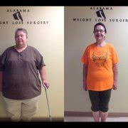 bariatric weight loss in birmingham alabama picture 1