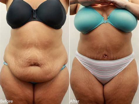average weight loss after a tummy tuck and picture 2