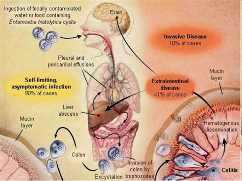 klebsiella liver cyst complications picture 2