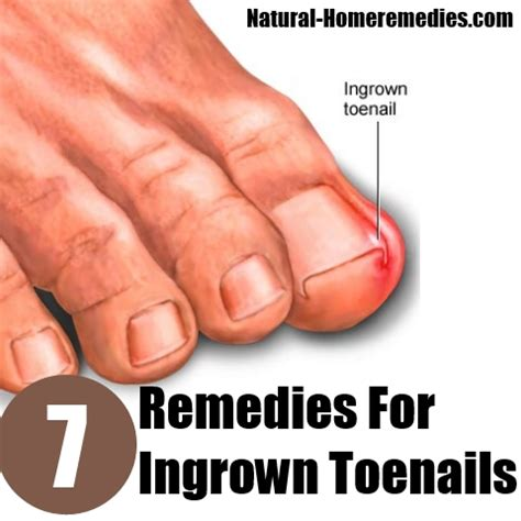 remedies for toenail fungus+ painting toenails picture 7