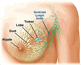breast augmentation and leaking of lymph nodes picture 5