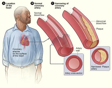 Affect liver cholesterol treatment picture 10