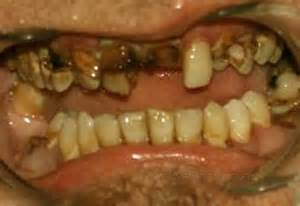 decayed teeth picture 3
