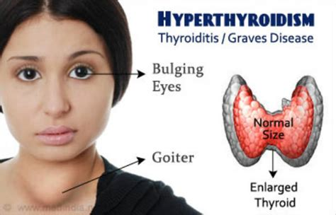 drugs tat cause hyperthyroidism picture 11