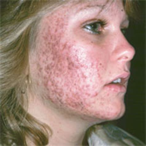 adolescent acne picture 11