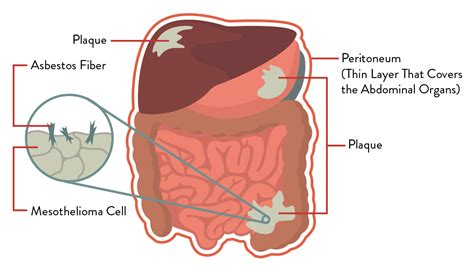 what if i have bladder cancer picture 11