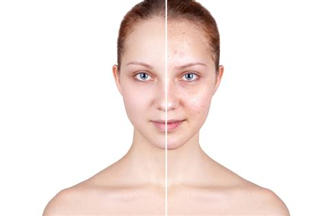 boston doctors that specialize in acne care picture 17