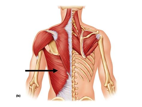 do torn attachments of the pectoralis muscle need picture 24