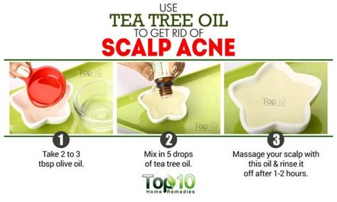 herbs that kill acne bacteria picture 1