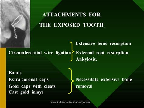 ligation of exposed tooth picture 3