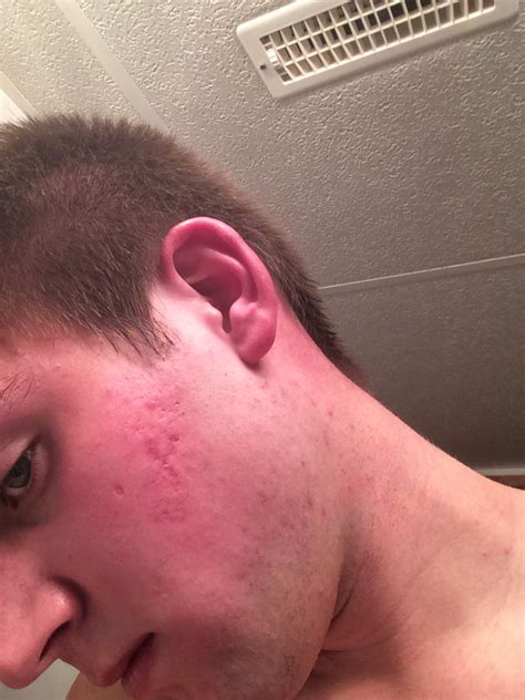 icepick acne scars picture 14