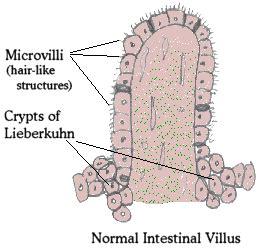 s parvovirus intestinal viruses picture 3