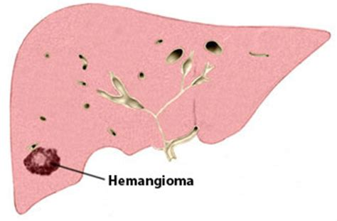 causes a liver hemangioma picture 17