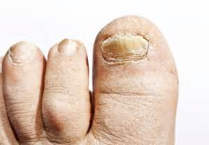 is funginix and zetaclear fungal nail treatment available picture 6
