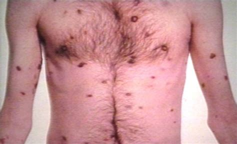 symptoms yeast infections picture 13