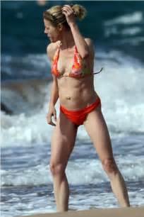 virginia beach breast augmentation picture 6